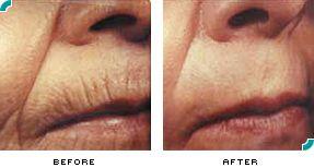 ba-wrinkles2.jpg